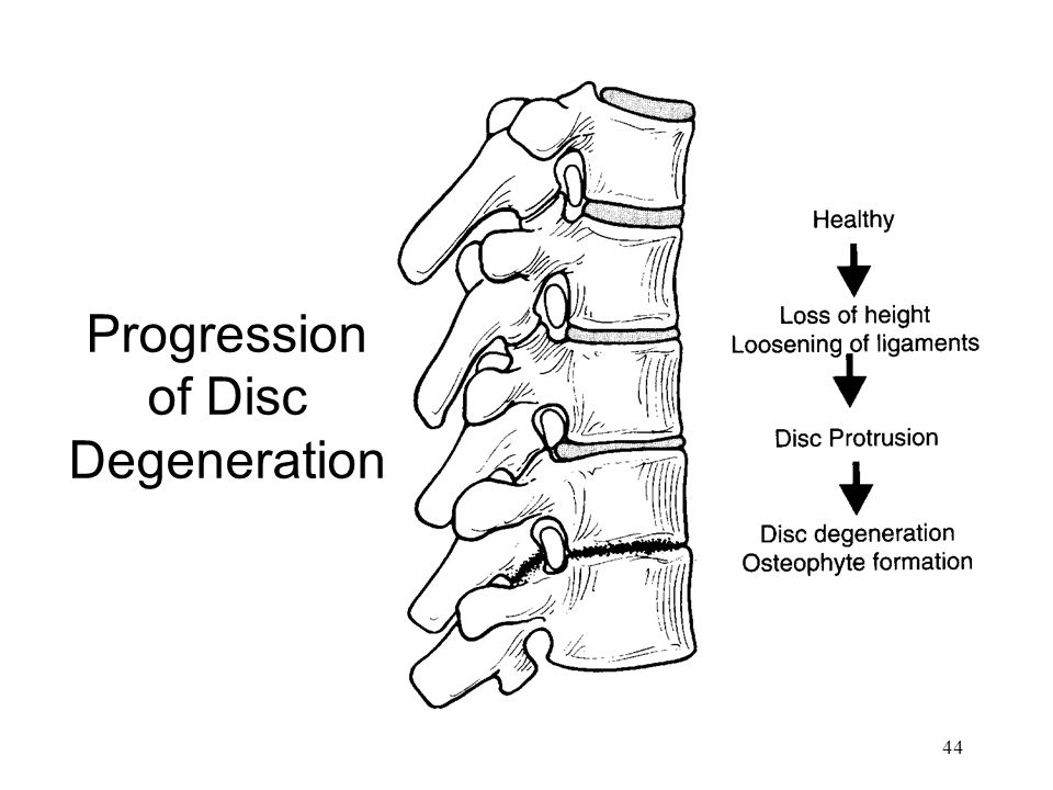 Progression of Disc Degeneration