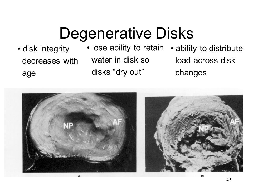 Degenerative Disks lose ability to retain disk integrity