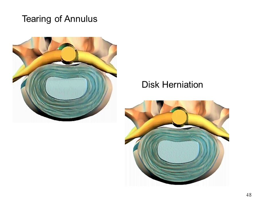 Tearing of Annulus Disk Herniation