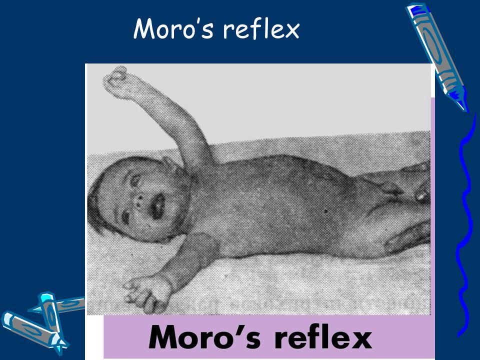 Moro's reflex