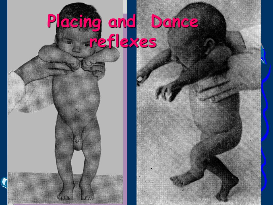Placing and Dance reflexes