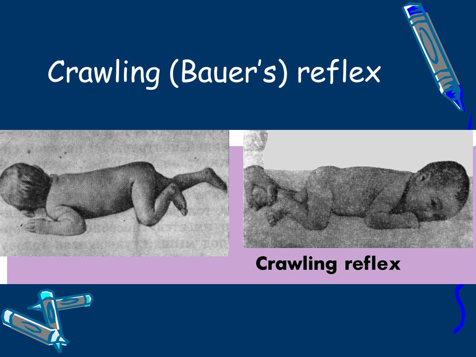 Crawling (Bauer's) reflex