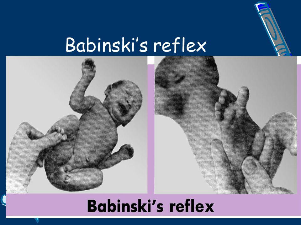 Babinski's reflex