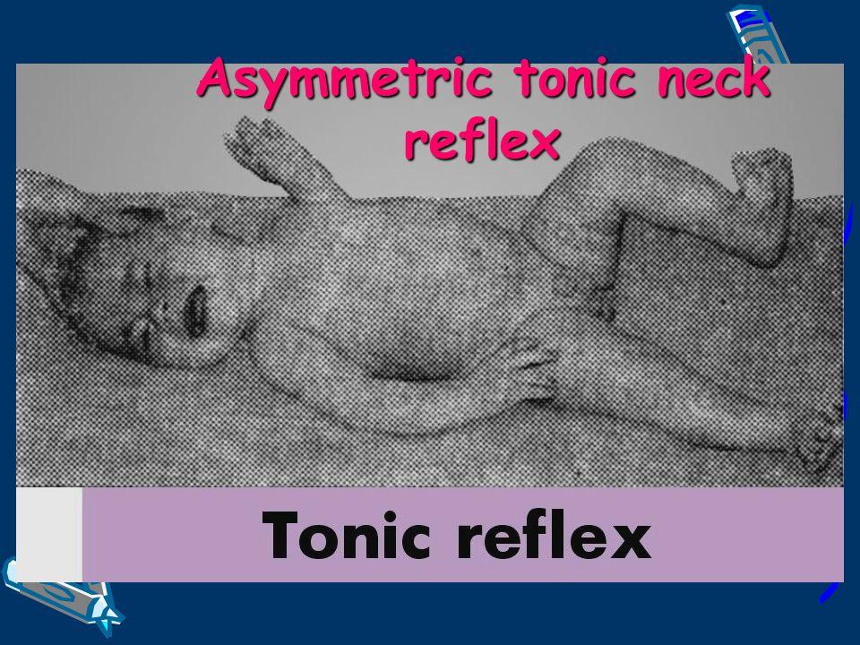 Asymmetric tonic neck reflex