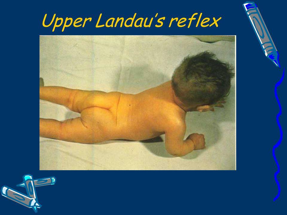 Upper Landau's reflex