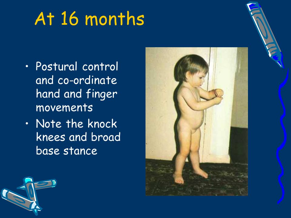 At 16 months Postural control and co-ordinate hand and finger movements.