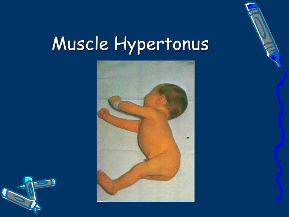 Muscle Hypertonus