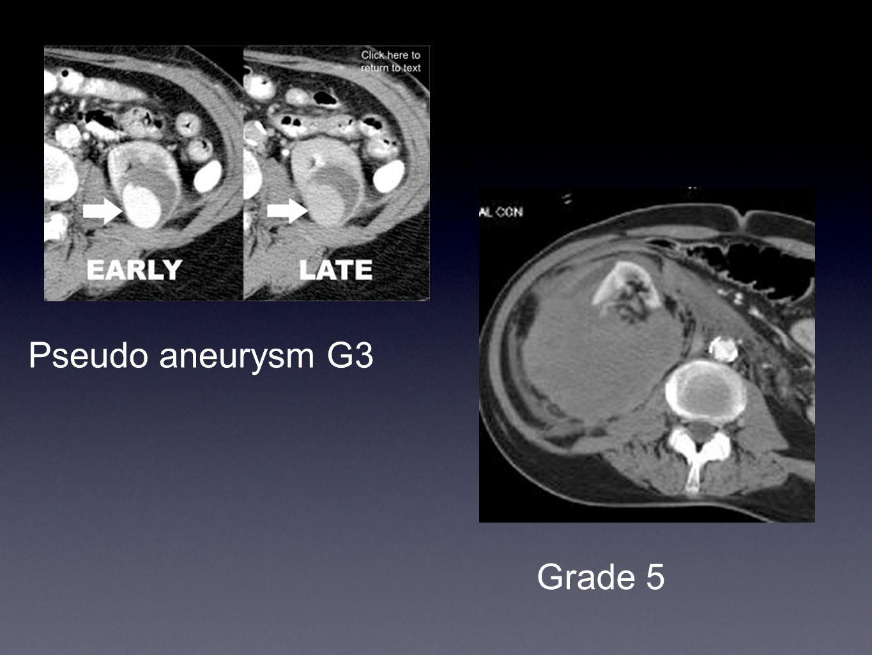 Pseudo aneurysm G3 Grade 5