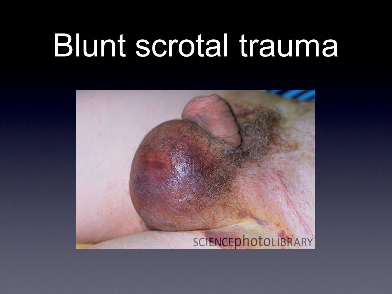 Blunt scrotal trauma