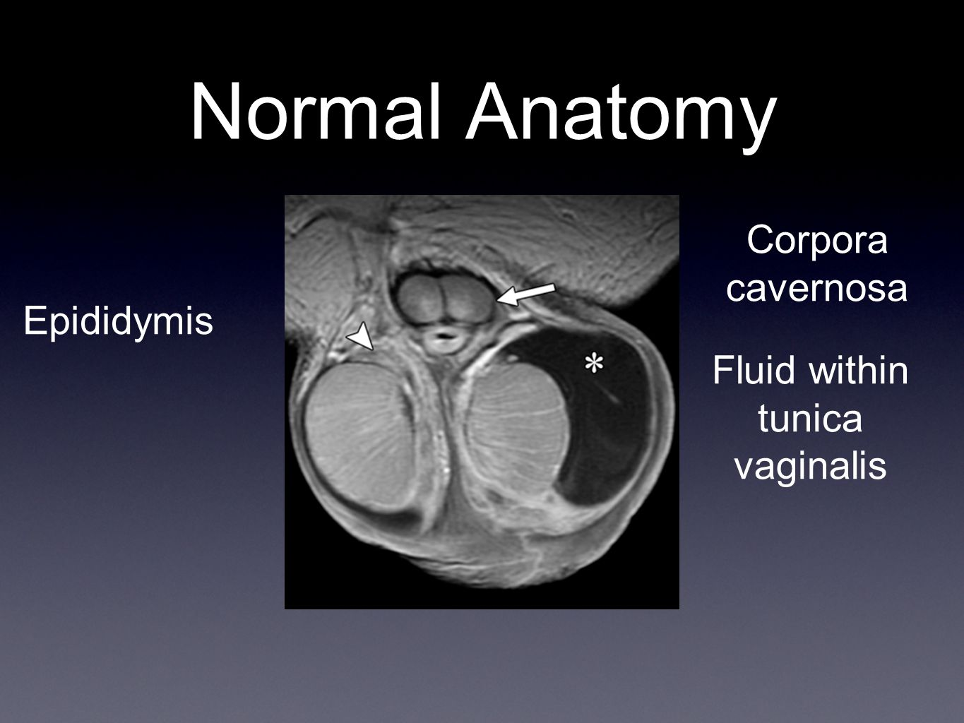 Fluid within tunica vaginalis