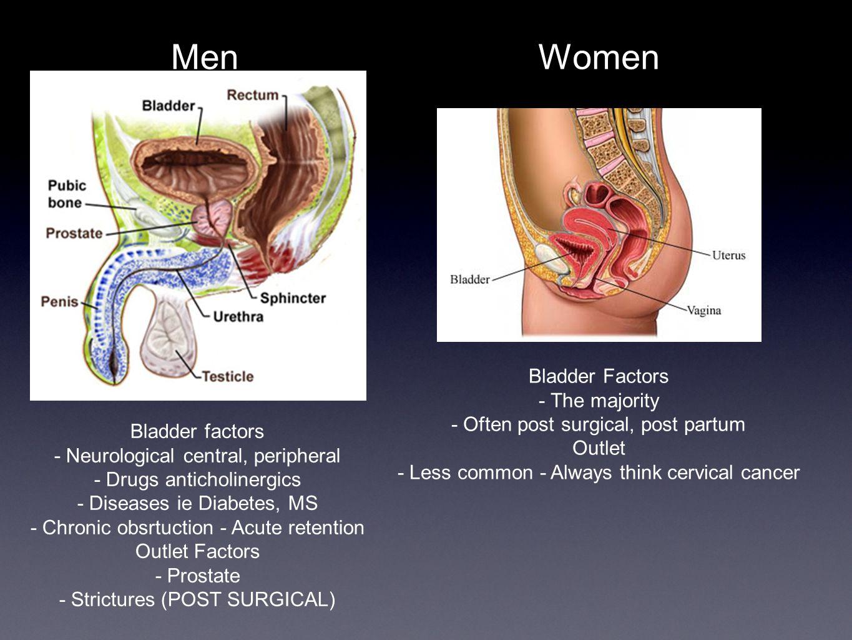Men Women Bladder Factors - The majority