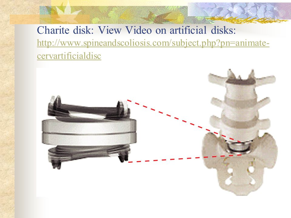 Charite disk: View Video on artificial disks: http://www