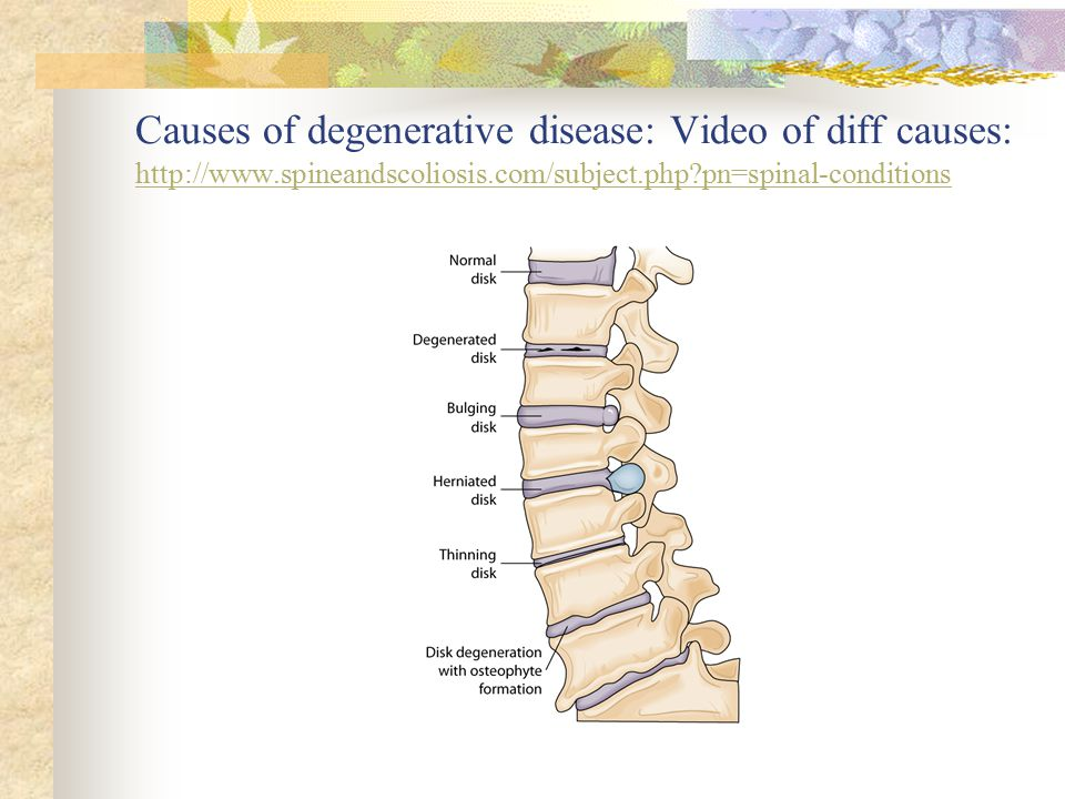 Causes of degenerative disease: Video of diff causes: http://www
