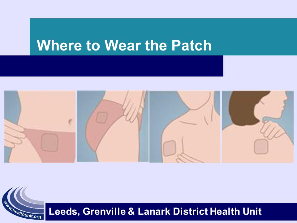 Where to Wear the Patch