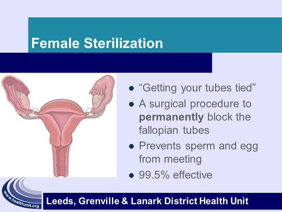 Female Sterilization Getting your tubes tied
