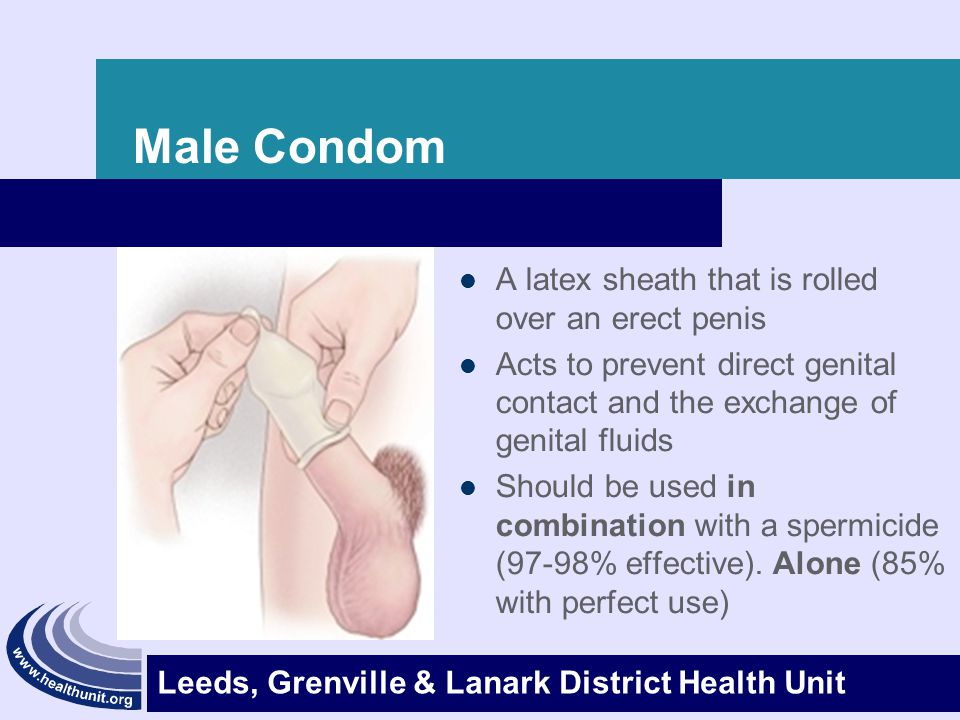 Male Condom A latex sheath that is rolled over an erect penis