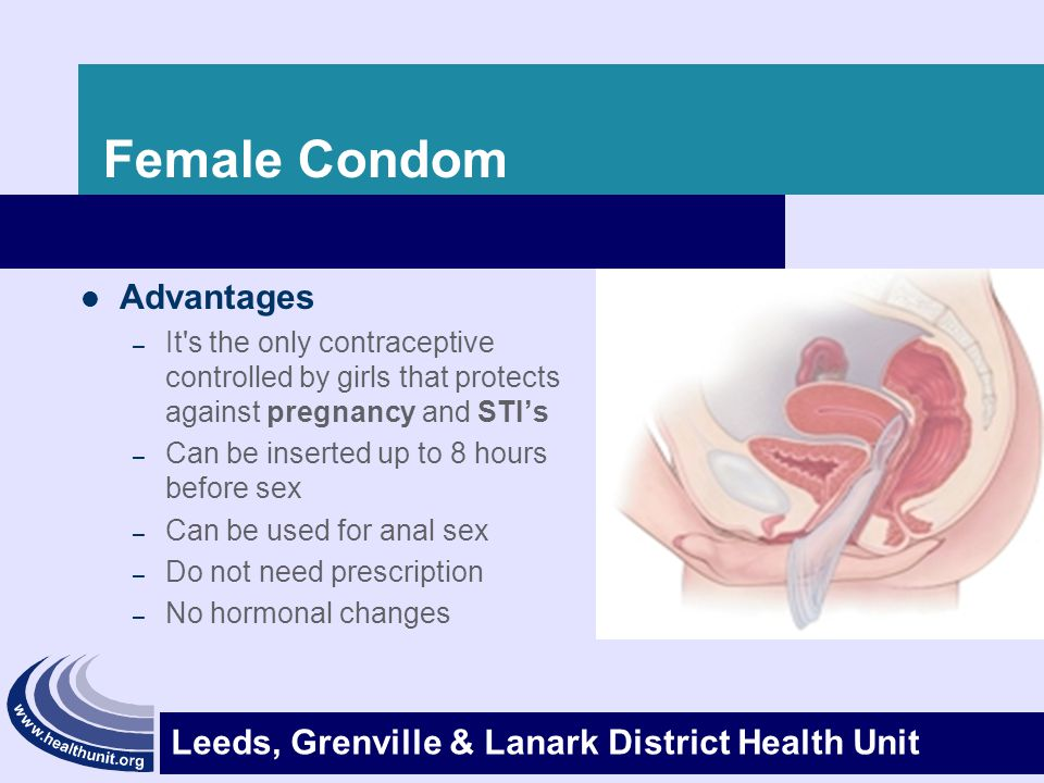 Female Condom Advantages