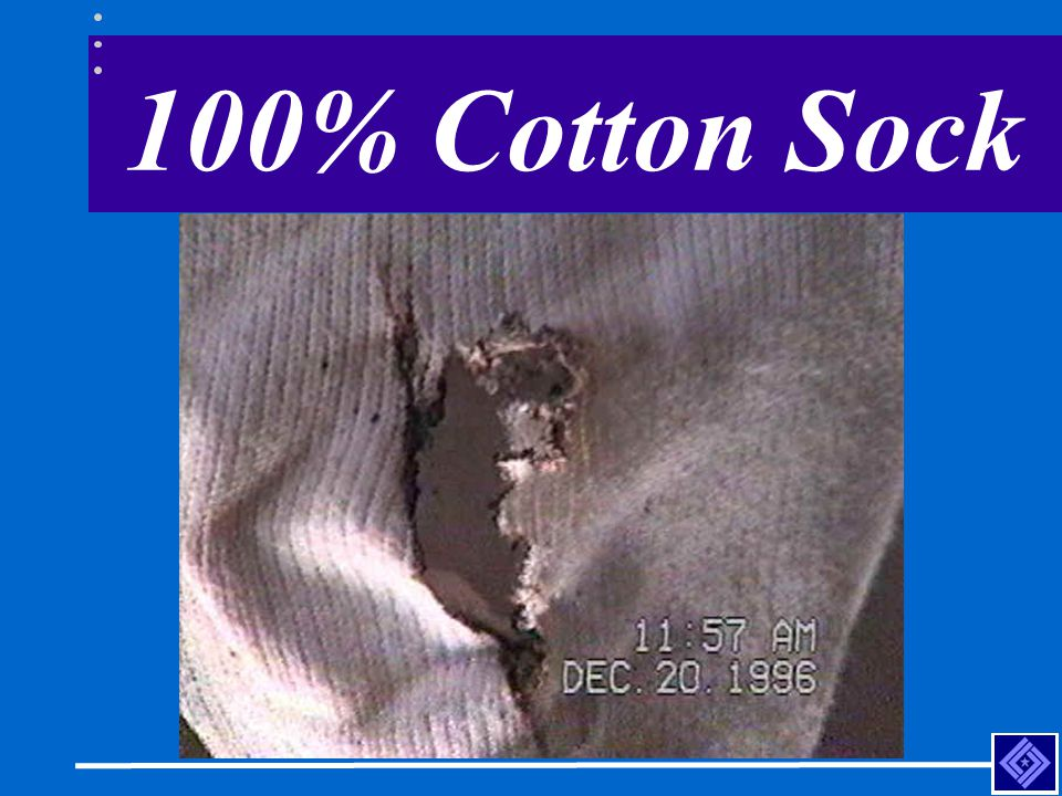 100% Cotton Sock Employee working on ground grabbed an energized phase while wearing only leather protector gloves.