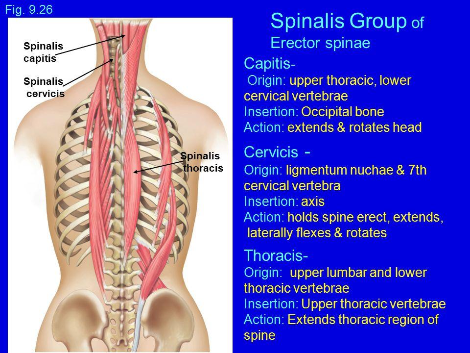 Semispinalis  definition of semispinalis by Medical