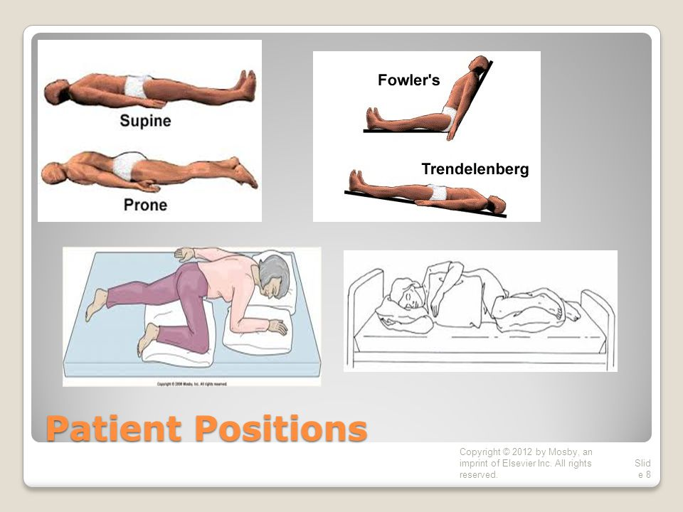 Patient Positions Copyright © 2012 by Mosby, an imprint of Elsevier Inc. All rights reserved.