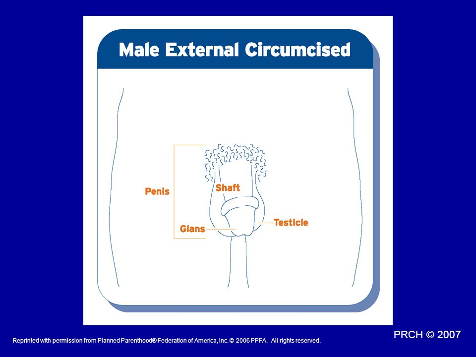Talking Points: Circumcision