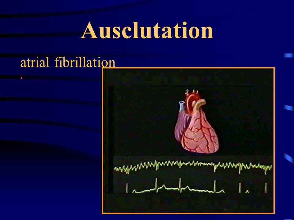 Ausclutation atrial fibrillation