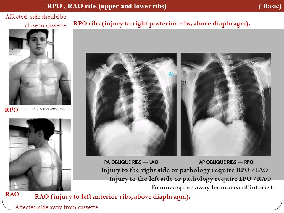 RPO , RAO ribs (upper and lower ribs) ( Basic)