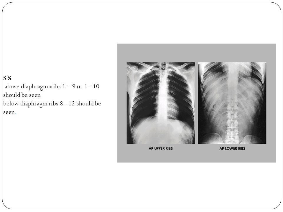 S S above diaphragm :ribs 1 – 9 or 1 - 10 should be seen.