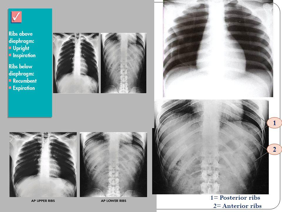 1 2 1= Posterior ribs 2= Anterior ribs