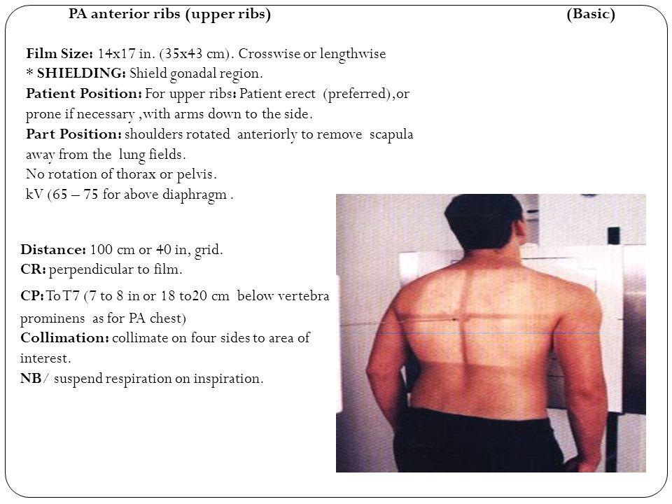 PA anterior ribs (upper ribs) (Basic)