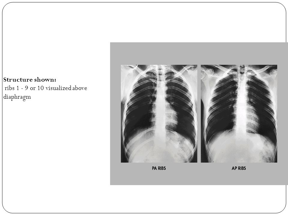 Structure shown: ribs 1 - 9 or 10 visualized above diaphragm