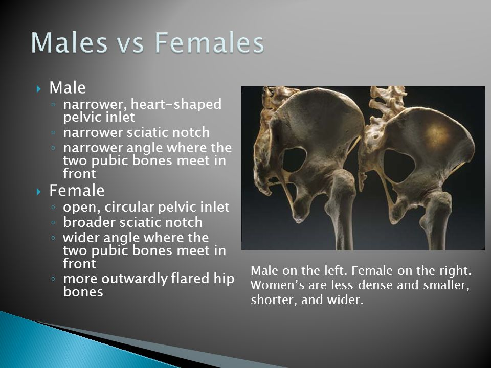 Males vs Females Male Female narrower, heart-shaped pelvic inlet