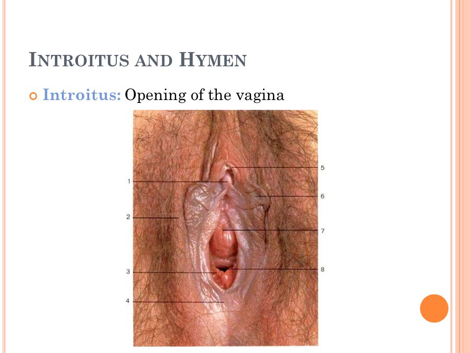 Introitus and Hymen Introitus: Opening of the vagina