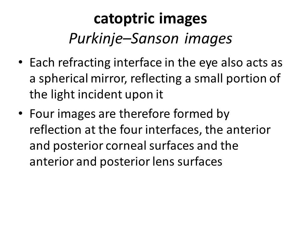 catoptric images Purkinje–Sanson images
