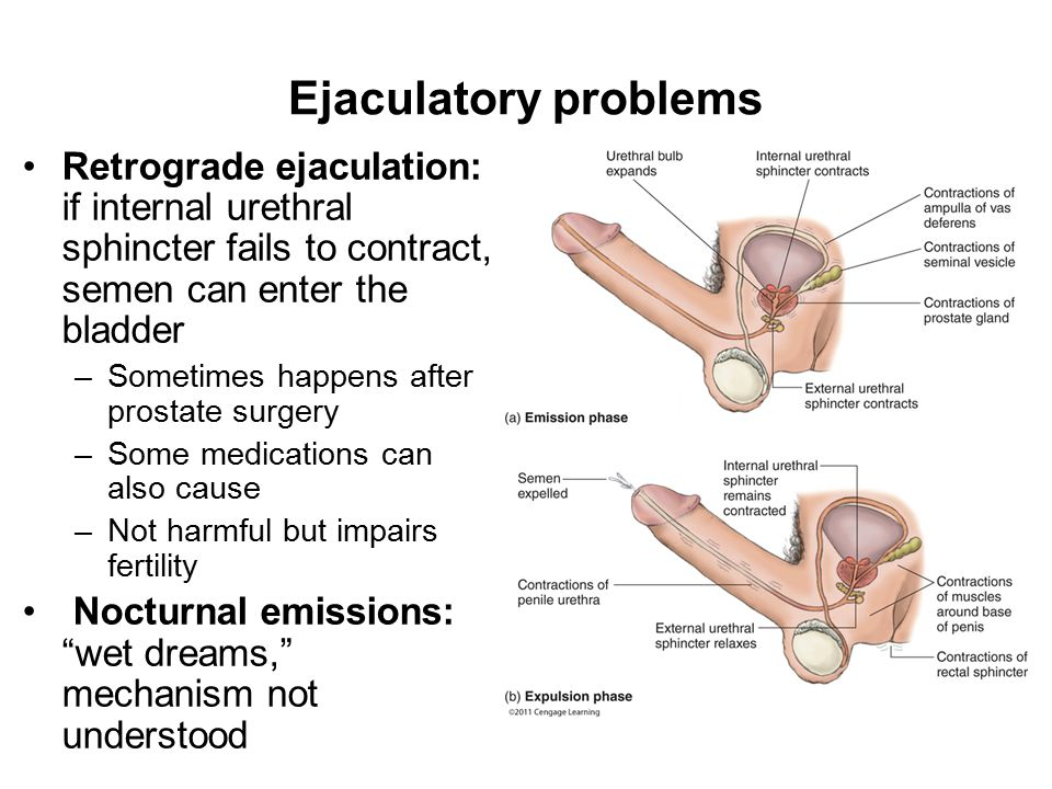 Ejaculatory problems Retrograde ejaculation: if internal urethral sphincter fails to contract, semen can enter the bladder.