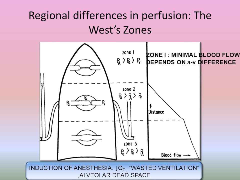 Regional differences in perfusion: The West's Zones
