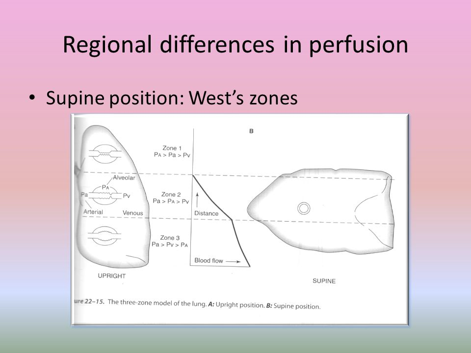 Regional differences in perfusion