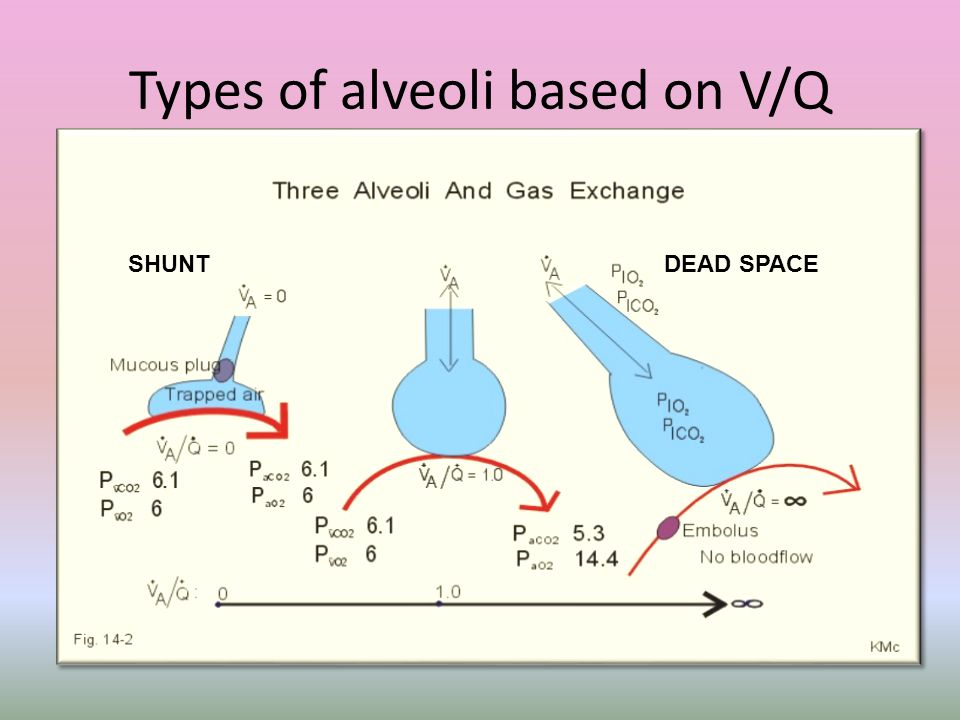 Types of alveoli based on V/Q