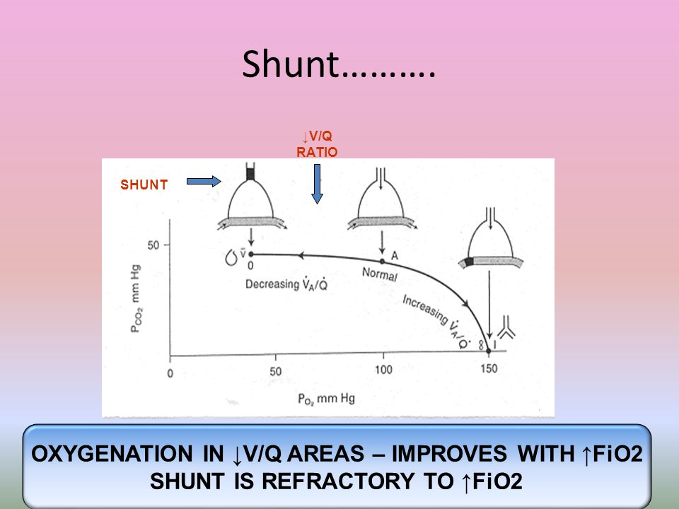 Shunt………. OXYGENATION IN ↓V/Q AREAS – IMPROVES WITH ↑FiO2