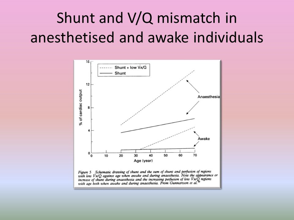 Shunt and V/Q mismatch in anesthetised and awake individuals