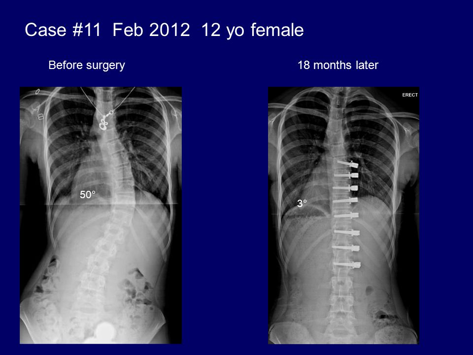 Case #11 Feb 2012 12 yo female Before surgery 18 months later 50° 3°