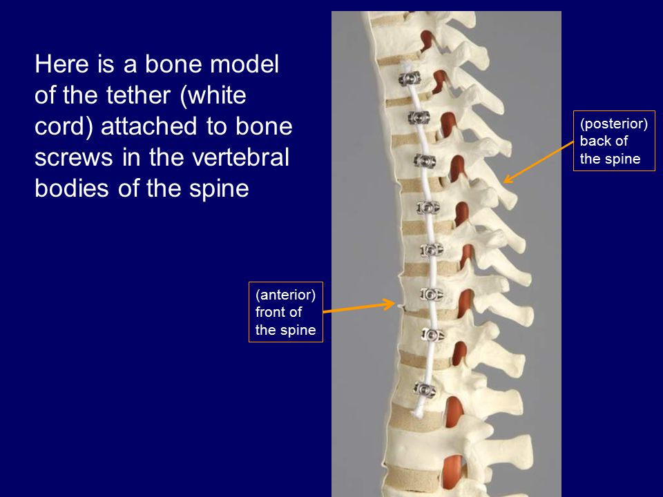 Here is a bone model of the tether (white cord) attached to bone screws in the vertebral bodies of the spine