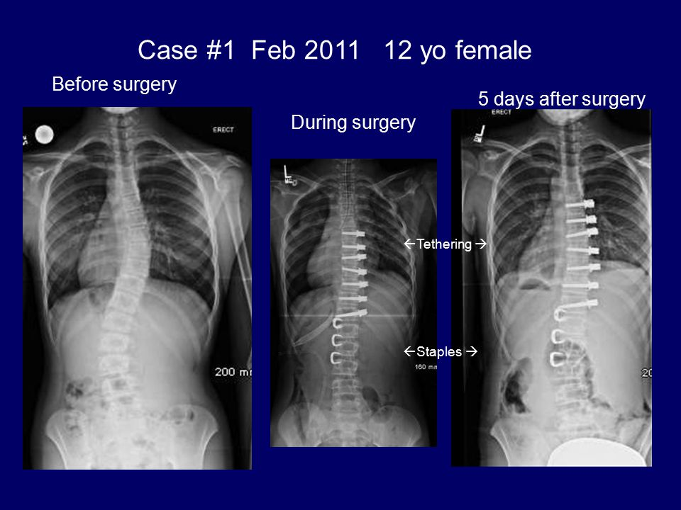 Case #1 Feb 2011 12 yo female Before surgery 5 days after surgery