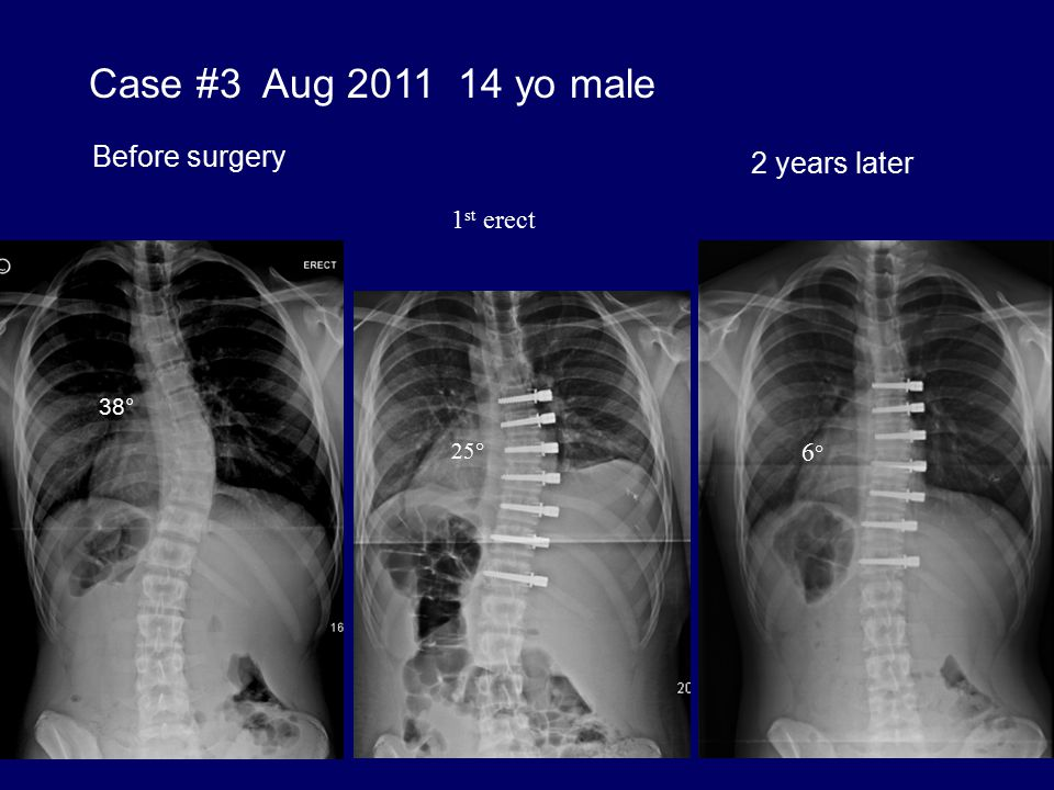 Case #3 Aug 2011 14 yo male Before surgery 2 years later 1st erect 6°