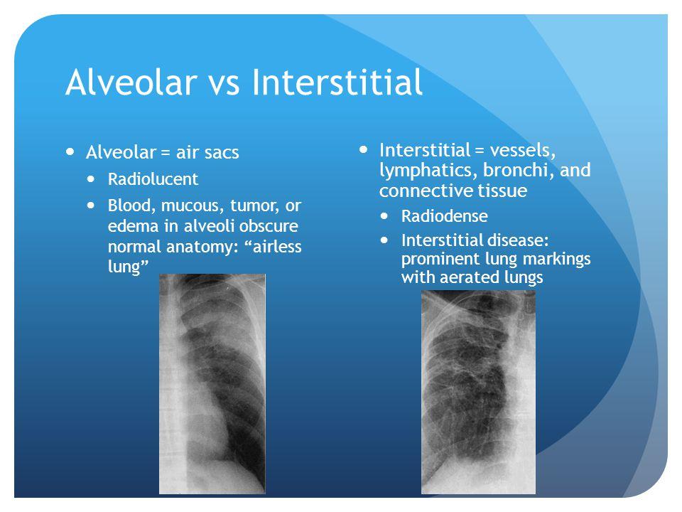 Alveolar vs Interstitial