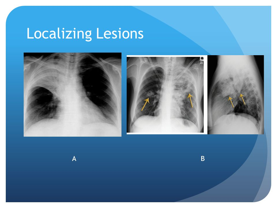 Localizing Lesions A. Right upper lobe infiltrate B left upper lobe patchy infiltrate A B