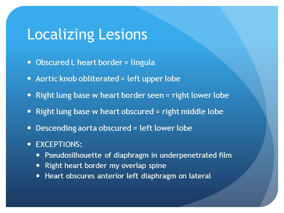 Localizing Lesions Obscured L heart border = lingula