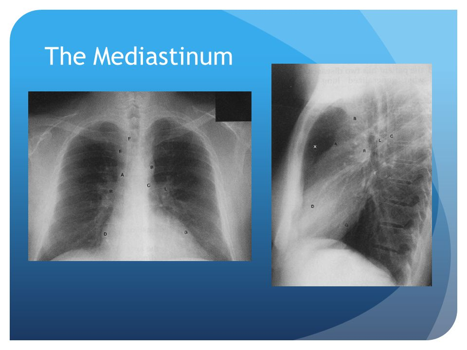 The Mediastinum A = ascending aorta B aortic knob C descending aorta D right heart border E superior vena cava F right tracheal wall G left heart.