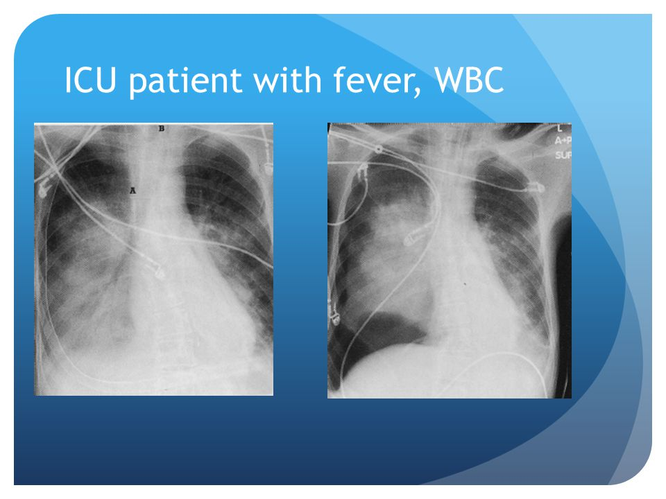 ICU patient with fever, WBC