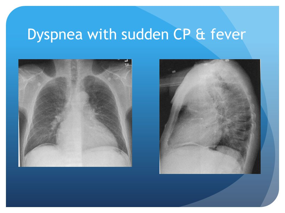 Dyspnea with sudden CP & fever